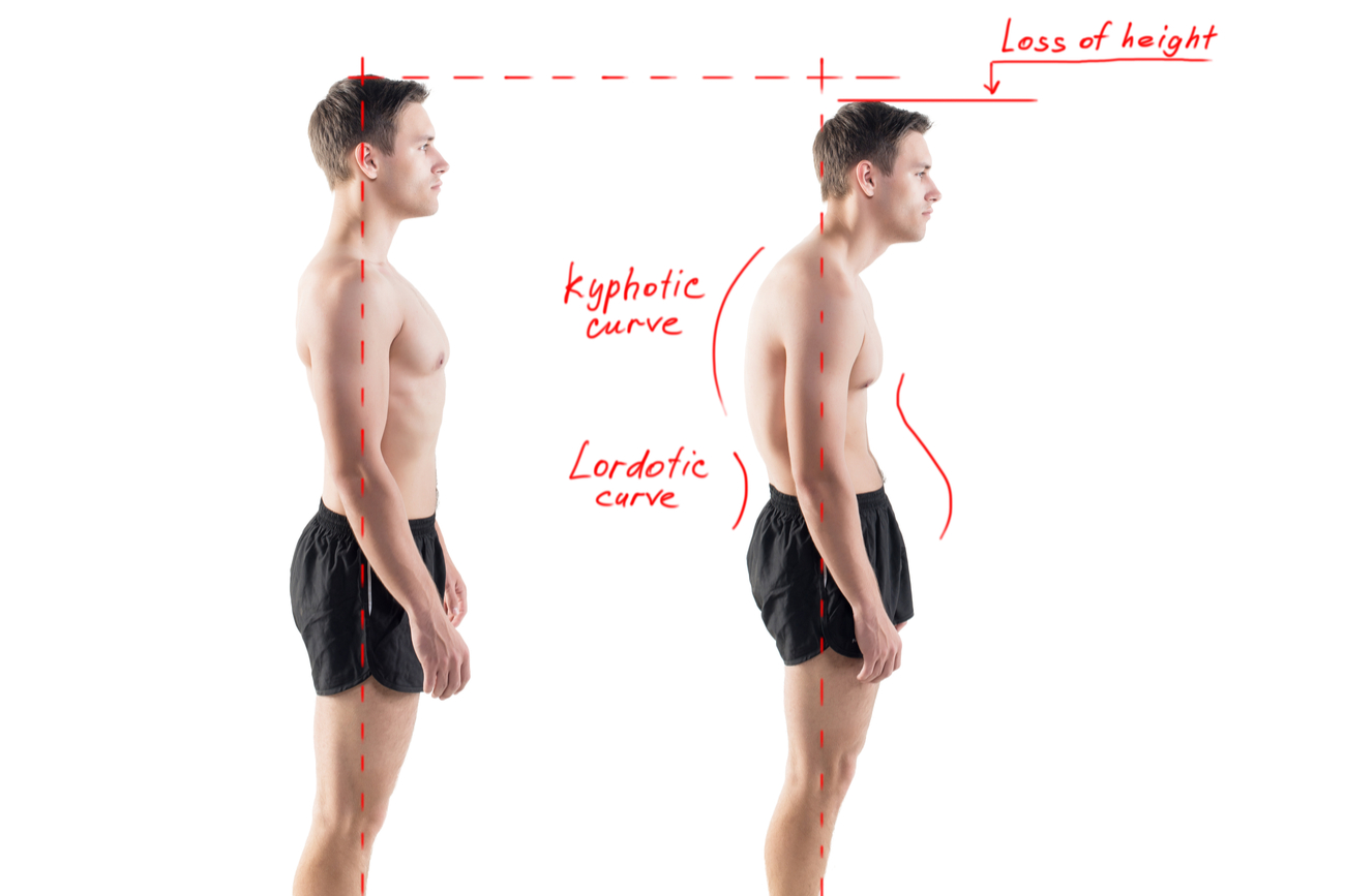 loss of height bad posture